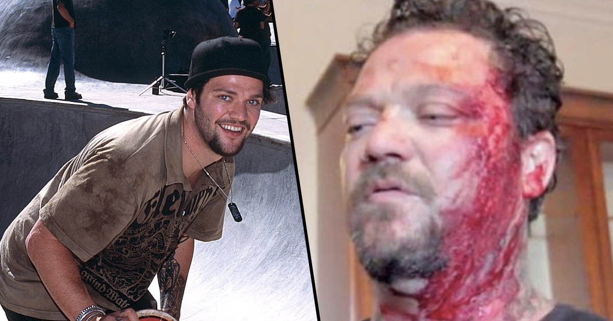 bam margera arrested after heartbreaking relapse