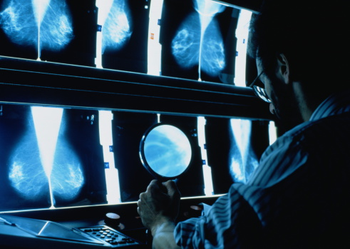 Scientists Find Cure For Deadliest Form Of Breast Cancer GettyImages 312450 001