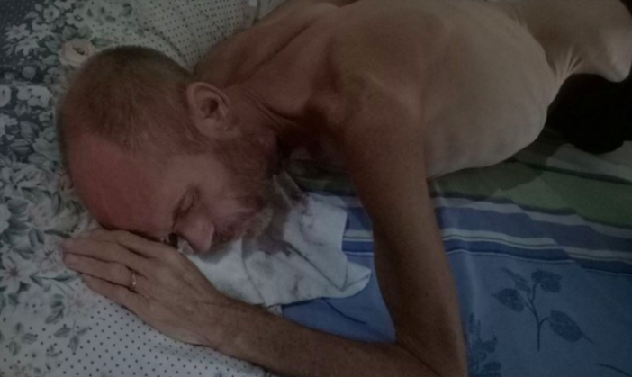 Woman Shares Horror Image Of Husband In Hope It Saves His Life