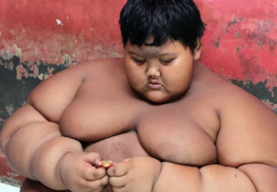 Worlds Fattest Boy Loses Enough Weight To Finally Go Out And Play With Friends Worlds Fattest Boy A