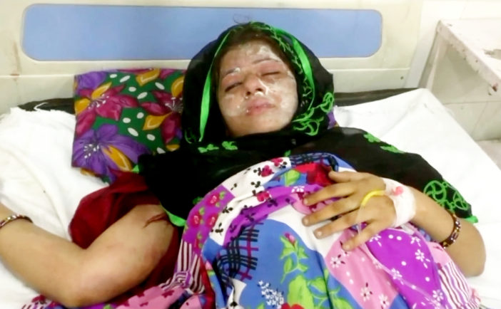 Man Pours Acid On Wife Because She Gave Birth To A Girl Not A Boy acid attack the 114804 702x434