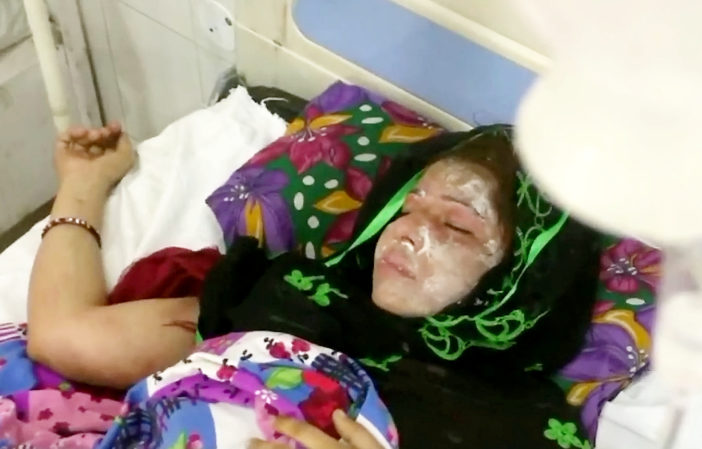 Man Pours Acid On Wife Because She Gave Birth To A Girl Not A Boy acid attack the 114805 702x449