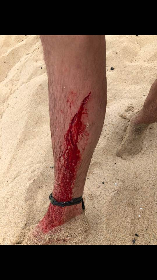 Man Gets Bitten By A Bear Shark And Snake In Less Than Four Years