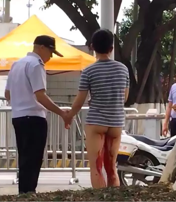 Asia Wire Chinese Student Genitals Chopped Off
