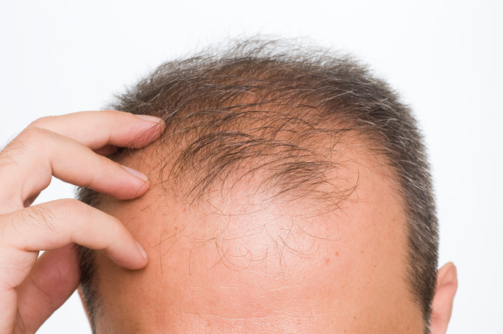 New Drug That Could Cure Baldness In Days Discovered By Scientists