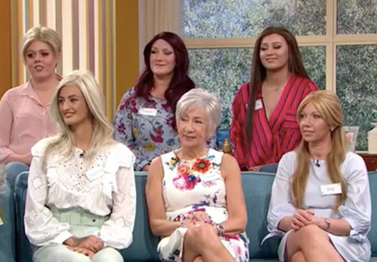 Women Take Wigs Off Live On This Morning To Prove Bald Is Beautiful