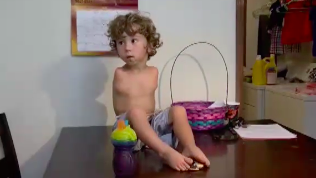 boy with no arms