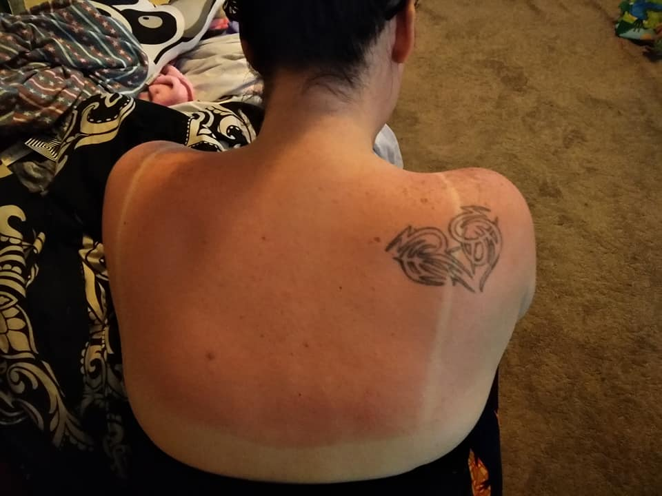 Mum Claims She Has A 'Miracle Cure' For Getting Rid Of Sunburn In 30 Minutes
