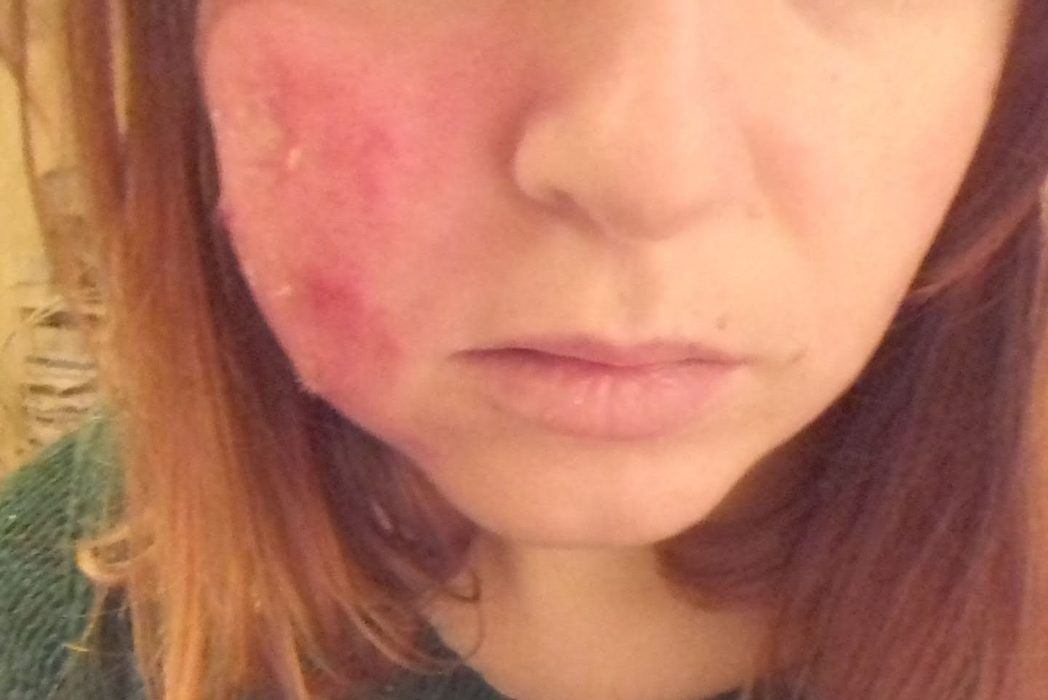 Woman Shares Shocking Photos To Show Reality Of Living With A Skin Disease %name