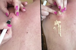 Cyst being popped