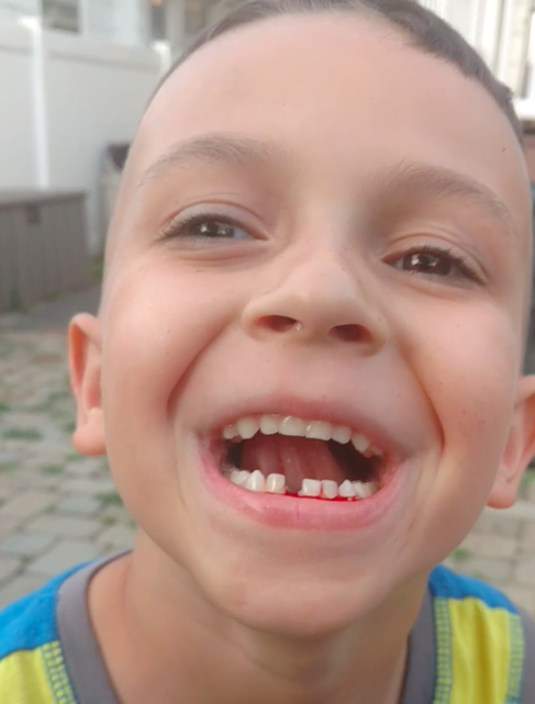 kid with tooth out