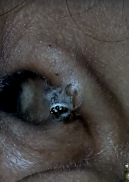 Spider in ear
