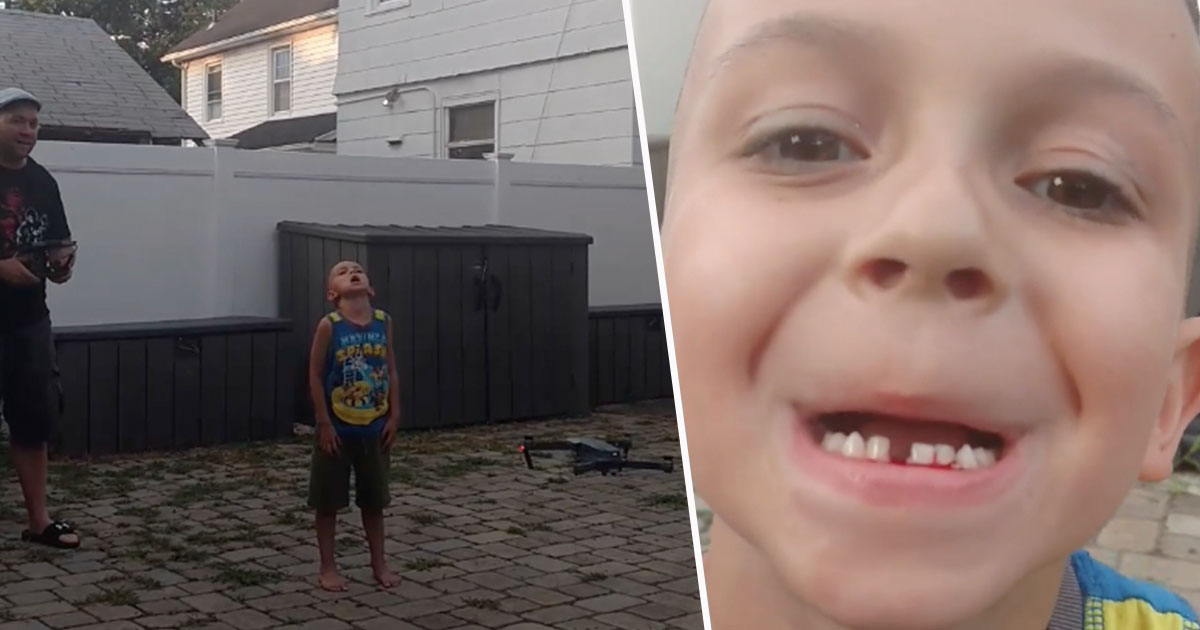 dad pulls tooth with drone