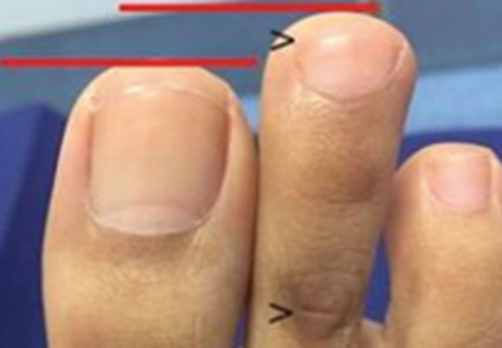 Toe shortening surgery