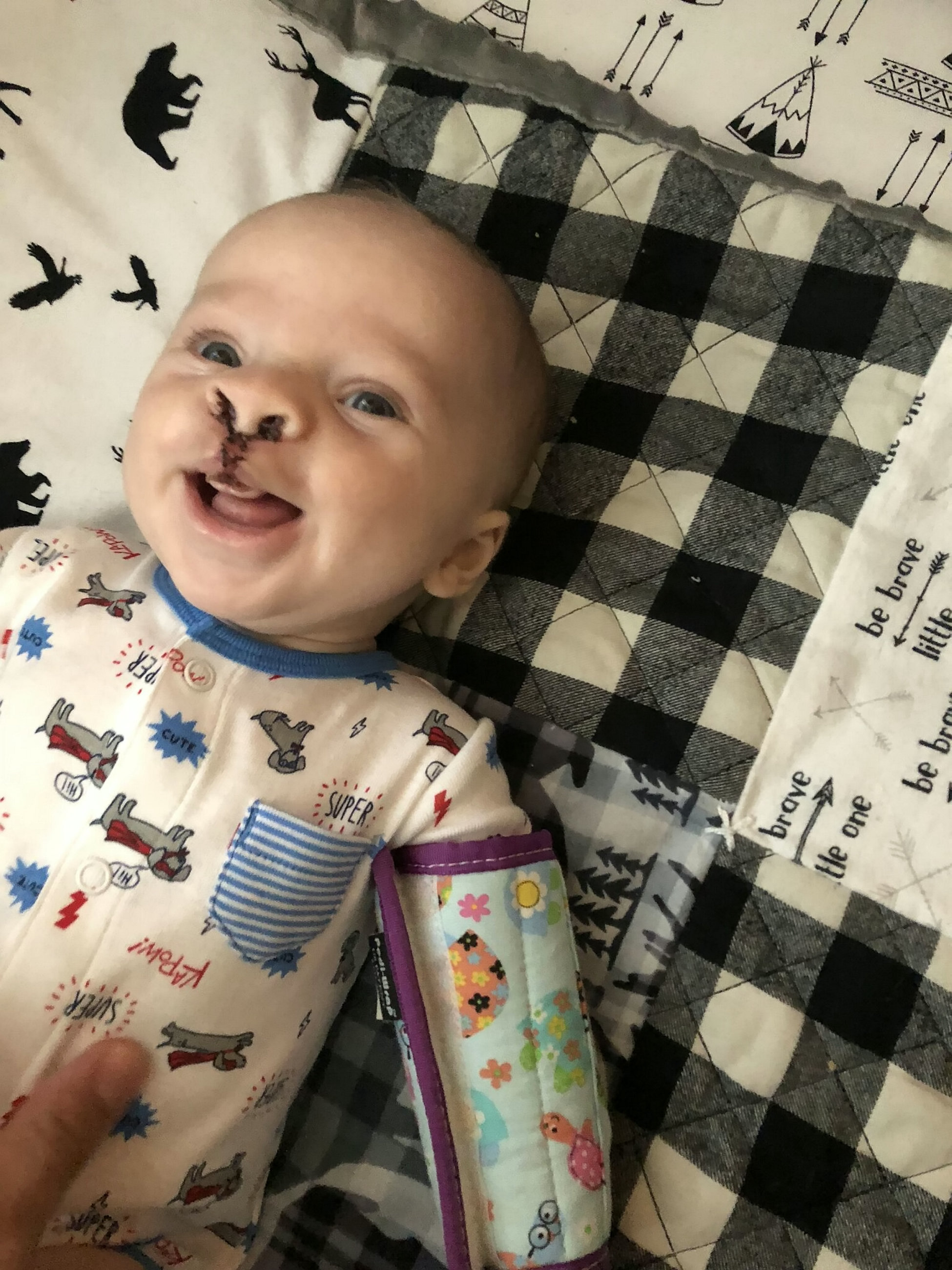 Baby born with cleft palate