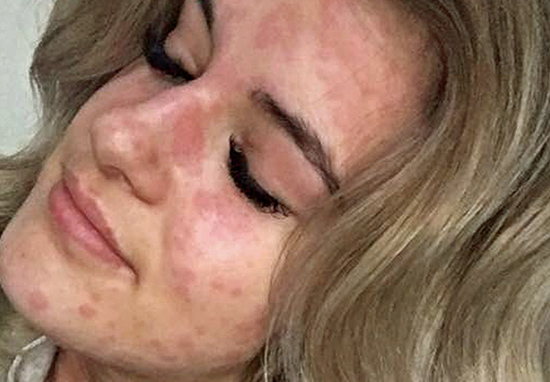 Woman allergic to cold