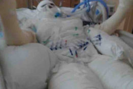timiyah covered in bandages