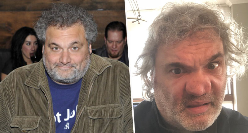 Artie Lange shares picture of cocaine damaged nose