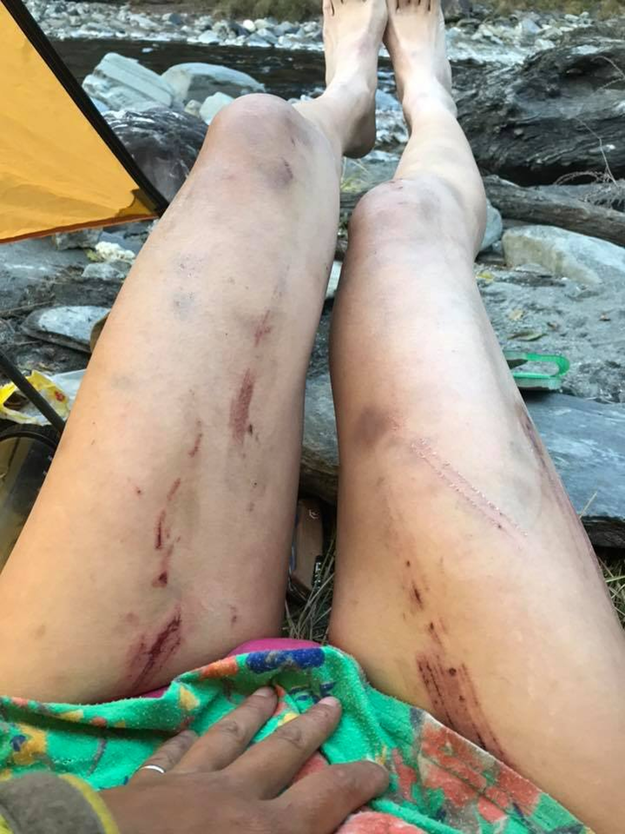 Gigi Wu's injured legs
