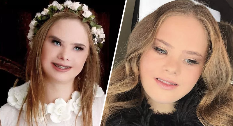 Model with Down's Syndrome