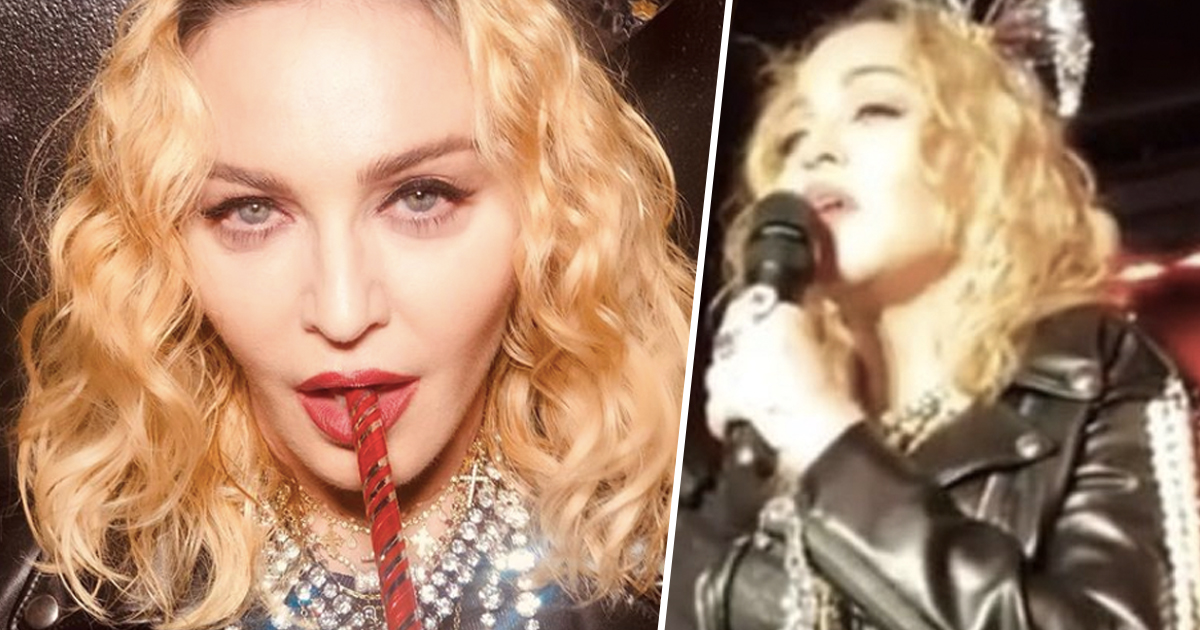 madonna bum implant allegations