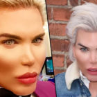 Rodrigo Alves Shares Images Of His New Face After Corrective Surgery