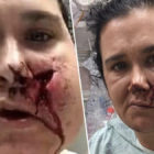 Mum Takes Crossbow To The Head After Throwing Son Out Of The Way
