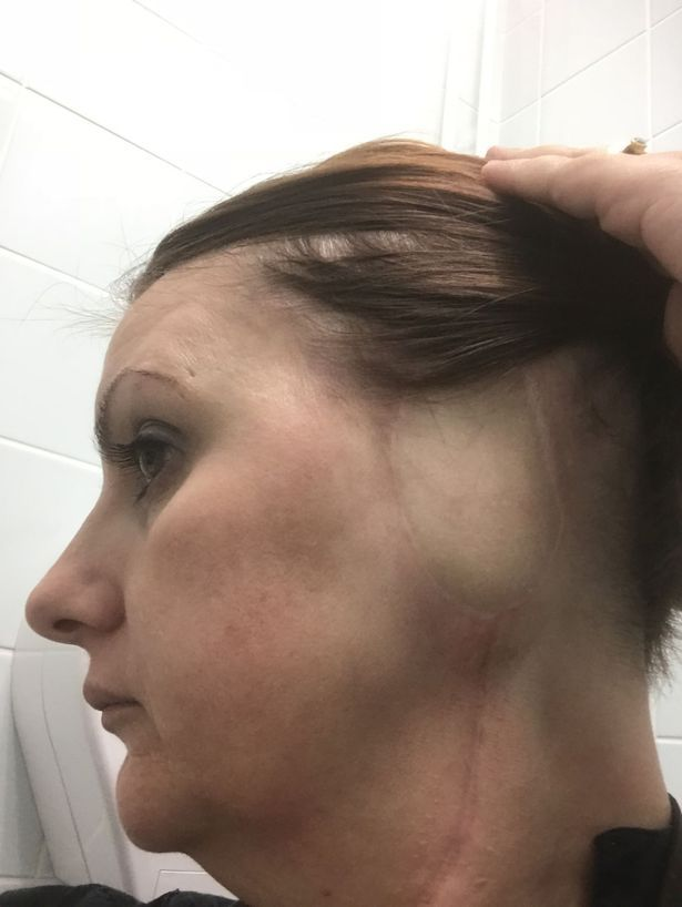 Woman has ear amputated due to skin cancer