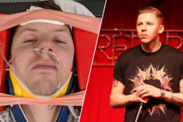 Professor Green has fractured his neck.