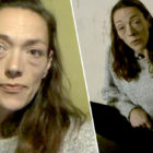 Heroin And Crack Addict Makes Incredible Transformation After Three Months In Rehab