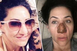 Woman with bulbous nose had skin burned off