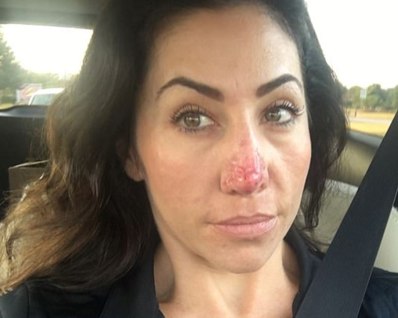 Woman with bulbous nose has extra skin burned off