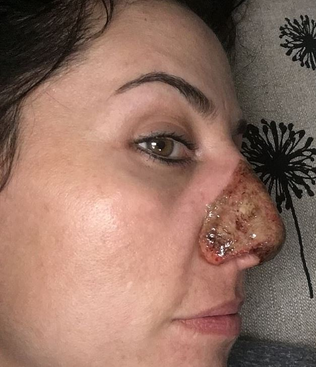 Woman with bulbous nose had extra skin burned off