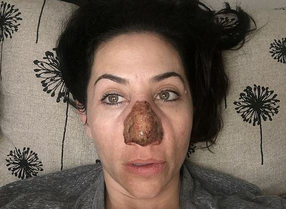 Woman with bolbous nose had extra skin burned off