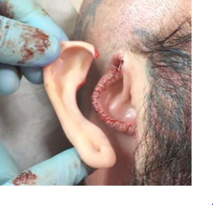 Ear removal