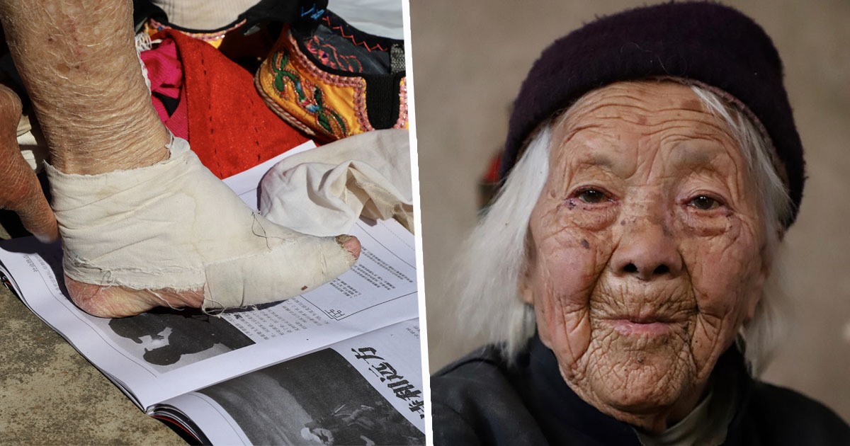 Last Generation Of Women Who Practice Foot Binding Unravel Their Bandages Unilad