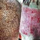 Surgeons Release Graphic Images Warning Against Cheap Hair Transplants