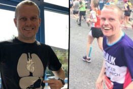 dad has stomach removed to run marathon