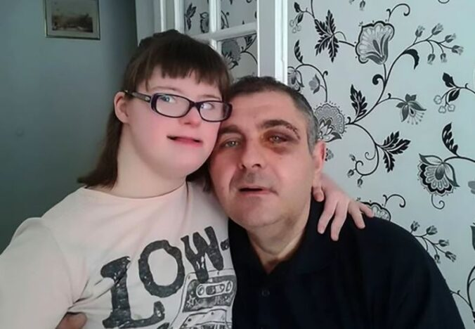 Dad is punched in eye after defending disabled daughter.