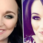 Woman 'Loses Half Her Face' After Falling On Hot Curling Tongs