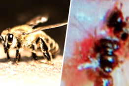 Doctors find bees living under a woman's eyelid.