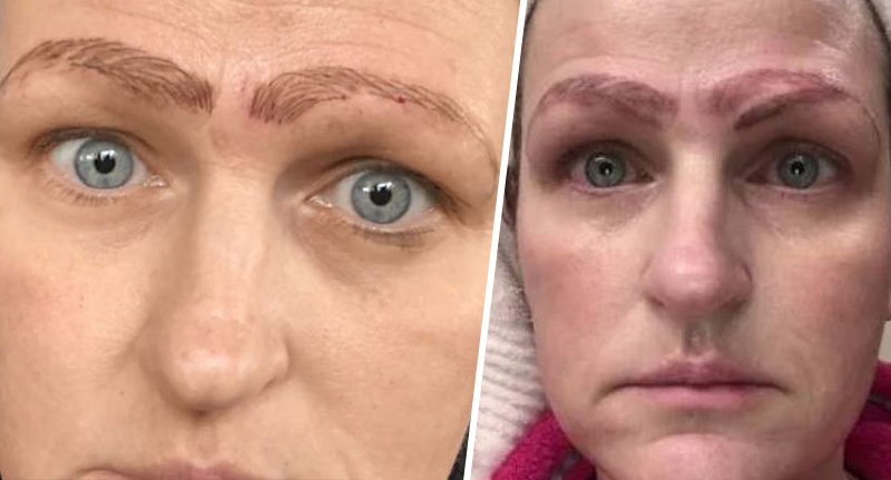 Mum Dumped After Cheap Microblading Treatment Leaves Her