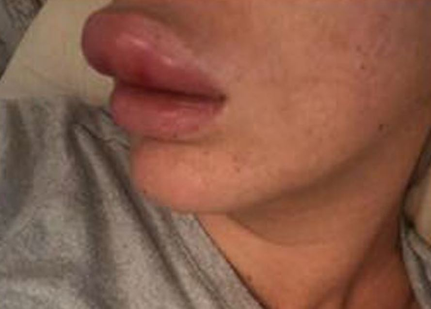 Woman's lips quadruple in size after botox