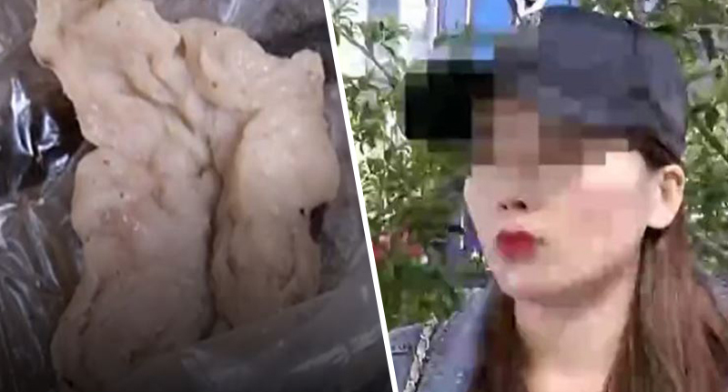 Woman sneezed out cotton ball 6 months after nose job