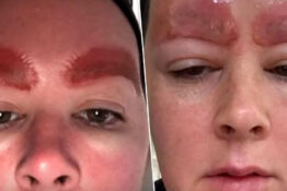 Woman left with infection after having eyebrows microbladed