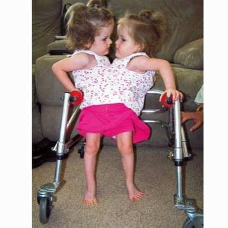 conjoined twins before successful surgery to separate them