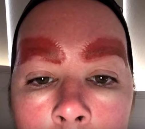 Woman left with infection after microblading