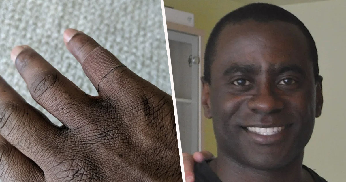 Guy Shares Emotional Reaction To Putting On Plaster In His Skin Tone For First Time