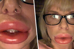 Mum left with 'sausage lips' after lip filler treatment went wrong.