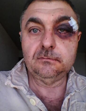 Man punched while defending daughter.
